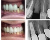 Implant Dentists Glendale AZ